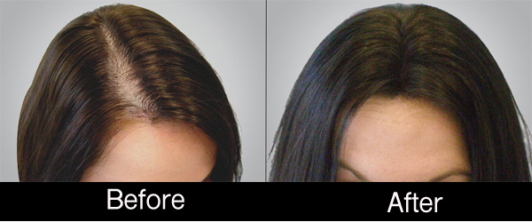 hair-restoration-woman-before-after-photo-NYC-10155