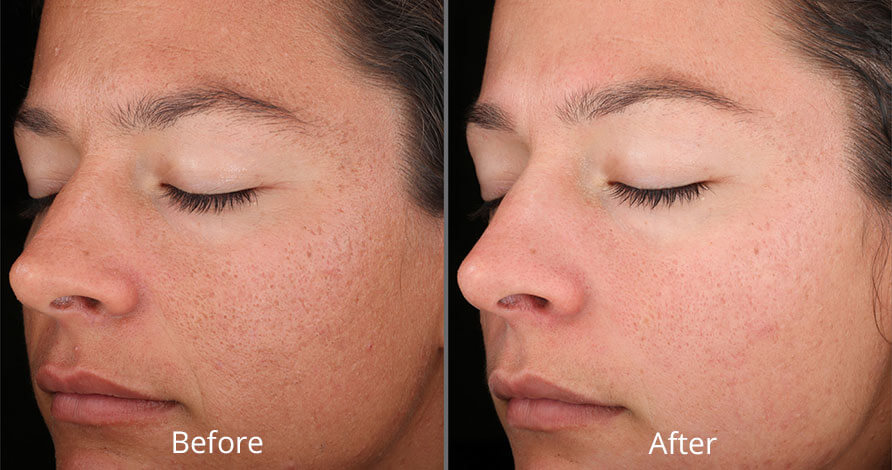 rejuvenize-chemical-peel-before-after-chesapeake-va-virginia-chesapeake-vein-medspa-full-4