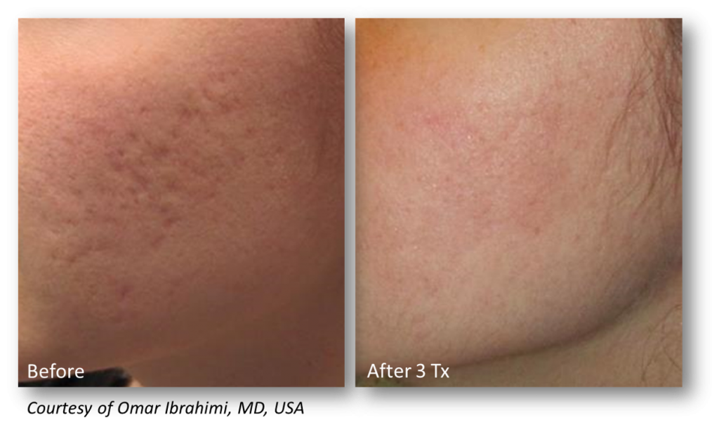 Cheek with pitted scars before microneedling and with smooth skin after 3 treatments