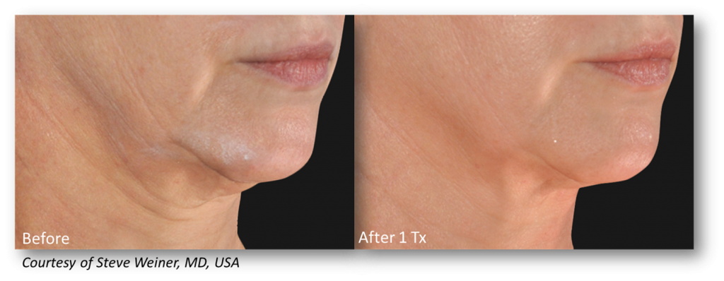 Woman's neck and jawline before and with smoother, tighter contours after one microneedling treatment