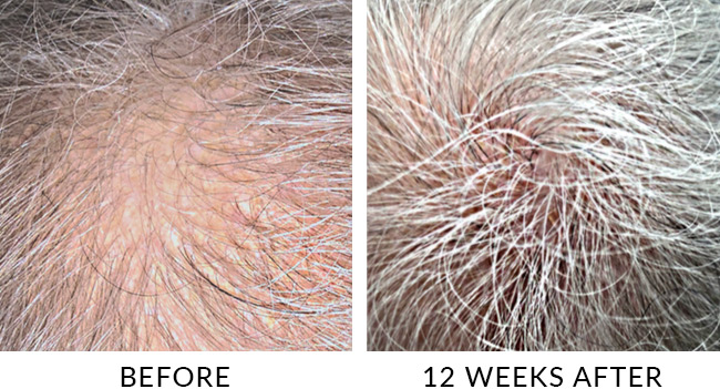 Before and after 12 weeks of LaseMD Laser hair loss treatment