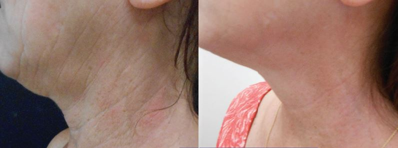Side of woman's neck with lines, sagging, brown spots on the left and smoother, clearer skin on the right